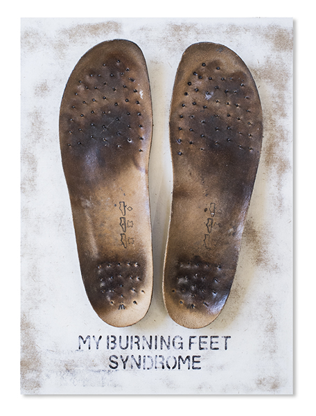My Burning Feet Syndrome
